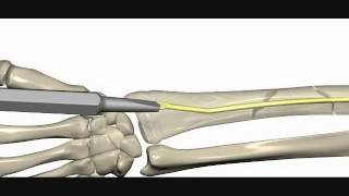 Download RIN Radius İntramedüller Çivi Radius Intramedullary Nail Video