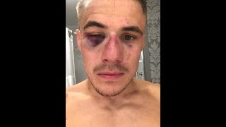 Download Nathaniel Wood shows off battle scars after epic win on UFC debut Video