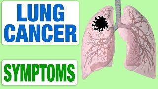 Download Lung Cancer - All Symptoms Video