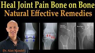 Download Heal Joint Pain Bone on Bone - Dr. Alan Mandell, D.C. Video