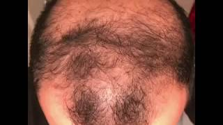 Download 6 months using minoxidil - Rogaine 5% Before & After results Video