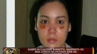 Download Claudine Barretto, nagka-pasa raw dahil sa post-surgical procedure, ayon kina Raymart Santiago Video