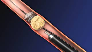 Download CoAx 10mm Stone Control Catheter from Accordion Medical Video