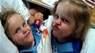 Download Conjoined Twins - Herrin Twins-Two lives Full of Miracles Video