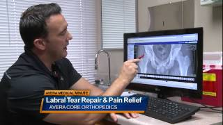 Download Labral tear repair and pain relief - Medical Minute Video