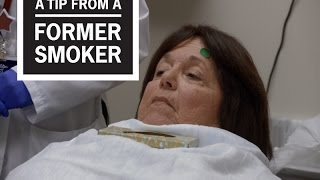 Download CDC: Tips From Former Smokers – Marlene's Eye Injections Video
