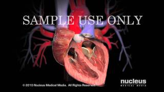 Download Aortic Valve Replacement Video