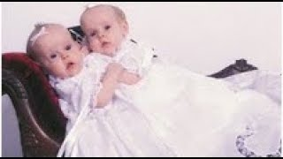 Download Conjoined Twins Are Famous In 2002 And 11 Years Later They're Back On TV Living Separate Lives Video