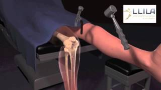 Download Stature lengthening via Precise intramedullary Rod Video