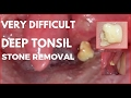 Very Difficult Deep Tonsil Stone Removal.