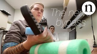 Download The nerve bypass: how to move a paralysed hand Video