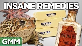 Download 10 Insane Old Time Remedies Video