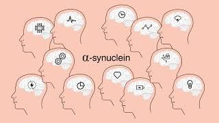 Download Parkinson's disease : alpha-synuclein, a major factor ? Video