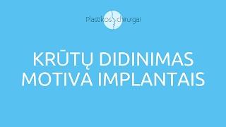 Download Krūtų Didinimas Motiva Implantais | PlastikosChirurgai.lt Video