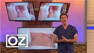 Download Dr. Oz's Fix for Back Fat in Women Video