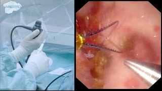 Download Flexible Ureteroscopy and Laser Dusting of 8 mm Kidney Stone Video