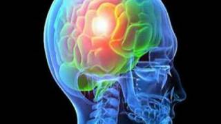 Download What Causes Epilepsy? (Epilepsy #5) Video
