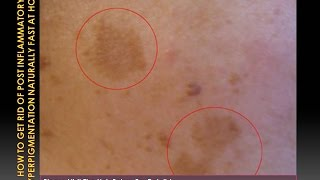 Download How to Get Rid of Post Inflammatory Hyperpigmentation Naturally Fast At Home Video