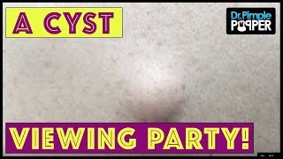 Download Welcome to His Cyst Viewing Party!! Video