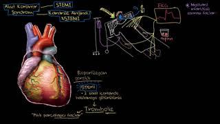 Download Kalp Krizi (Miyokard Enfarktüsü) İlaç Tedavisi (Fen Bilimleri) (Sağlık ve Tıp) Video