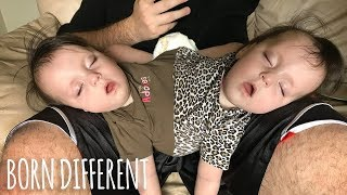 Download Conjoined Twins Are A Medical Miracle | BORN DIFFERENT Video