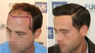 Download FUE Hair Transplant (3958 grafts in NW-Class lV-A), Dr. Juan Couto - FUEXPERT CLINIC Video
