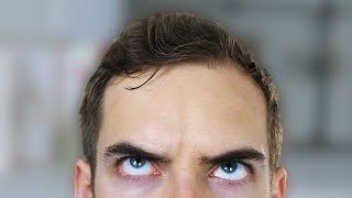 Download FIX MY FOREHEAD (YIAY #333) Video