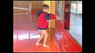 Download Stretches for Duchenne Muscular Dystrophy Video