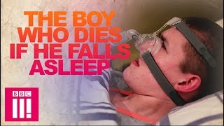 Download Our Teen Who Dies If He Falls Asleep | Living Differently Video