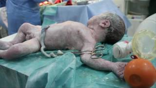 Download In ravaged Aleppo, the fight for survival can begin before birth Video