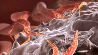 Download Targeted gold nanoparticles and RF heating to treat cancer Video