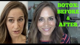 Download BOTOX: Best Before & After Video! Video