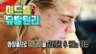 Download 여드름의 유발 원인, 화장품으로 여드름을 치료할 수 없는 이유 Video