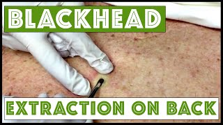Download Updated blackhead cyst x2 extraction on the back! For medical education- NSFE. Video