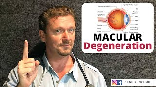 Download MACULAR Degeneration: Prevent It / Improve It - 2019 Video