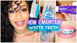 Download How I Maintain White Teeth with Braces Video