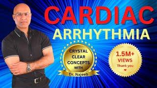 Download Cardiac Arrhythmias - Atrial & Ventricular Fibrillation - Tachycardia & Bradycardia Video