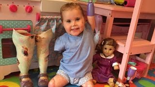 Download 2-Year-Old Who Lost Limbs From Meningitis Is So Excited To Have Matching Doll Video