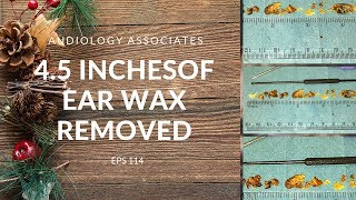 Download 4.5 INCHES OF EAR WAX REMOVED - EP 114 Video