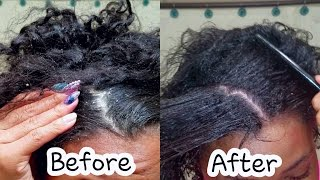 Download DIY HOT OIL TREATMENT || HOW TO Get RID of DANDRUFF!! Video