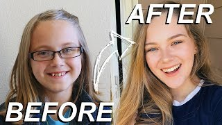 Download GETTING MY BRACES OFF AFTER 8 YEARS OF WAITING! Video