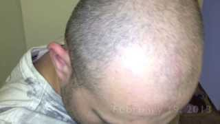 Download minoxidil 5% review - 2 months photos Video