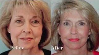 Download Dr Mentz Face Lift Video