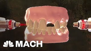 Download New Stem Cell Research Could Put An End To Dental Visits | Mach | NBC News Video