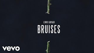 Download Lewis Capaldi - Bruises (Audio) Video