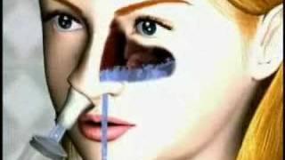 Download Nasaline - Nasal Irrigator Video