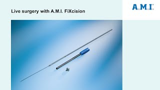 Download Live surgery with A.M.I. FiXcision Video