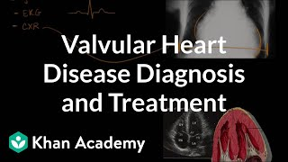 Download Valvular heart disease diagnosis and treatment | NCLEX-RN | Khan Academy Video