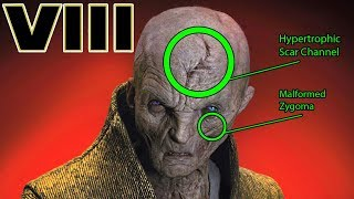 Download Snoke's INJURIES and SCARS Explained - Star Wars The Last Jedi Explained Video