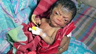 Download Shocking Face Of Newborn Baby Who Looks 80-years-old Video